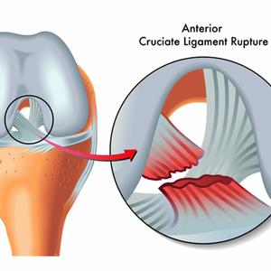 Arthroscopic ACL Reconstruction