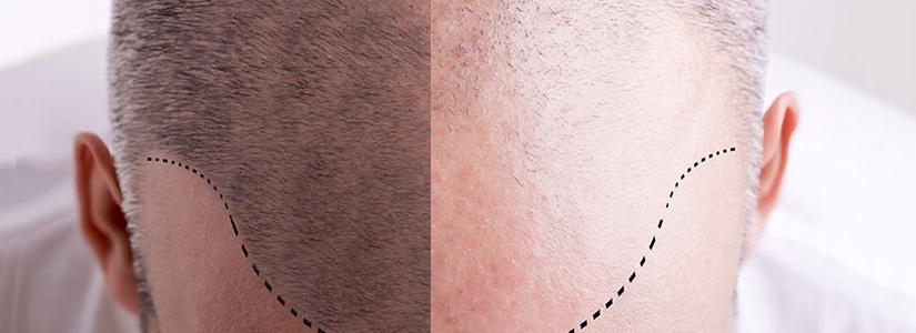 prp-hair-loss-therapy-1.jpg