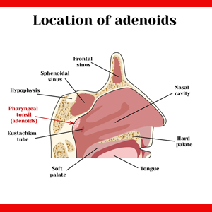 Adenoidectomy