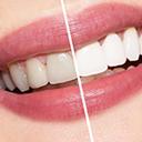 Cosmatic dental