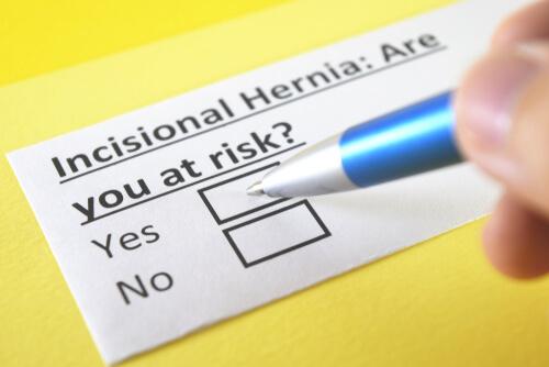 Incisional Hernia  Dubai Hernia Surgery Clinic
