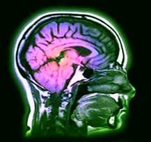 NEUROLOGY IMAGING