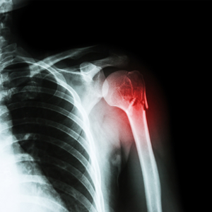 Shoulder Replacement Surgery