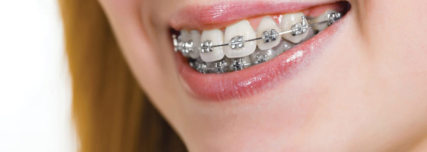Metal Braces Orthodontics