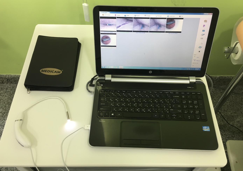 Video Proctoscope.jpg
