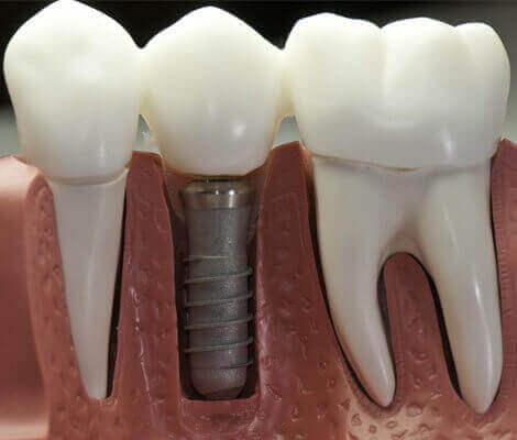dental impant