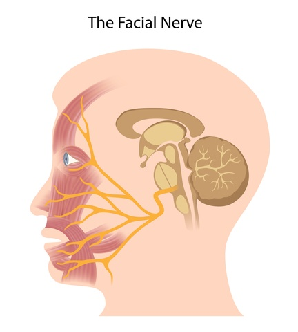 facial nerve palsy