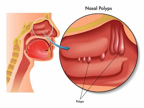 nasal polyposis