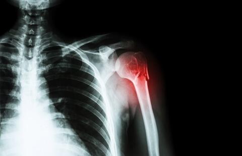 Shoulder Replacement Surgery - Shoulder Specialist in Dubai