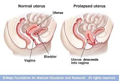 female genital prolapse prolapse