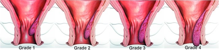 hemorrhoids grades