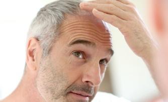 hair-transplant.jpg