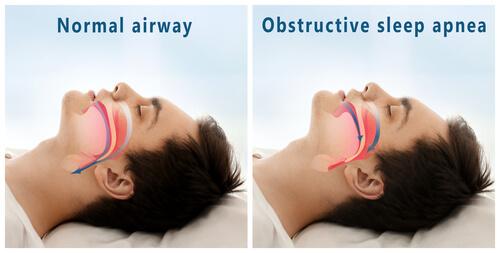 Obstructive Sleep Apnea | Dubai Pulmonary Medicine Clinic
