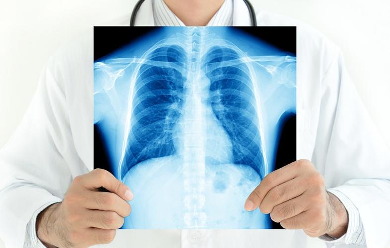 pulmonary1.jpg