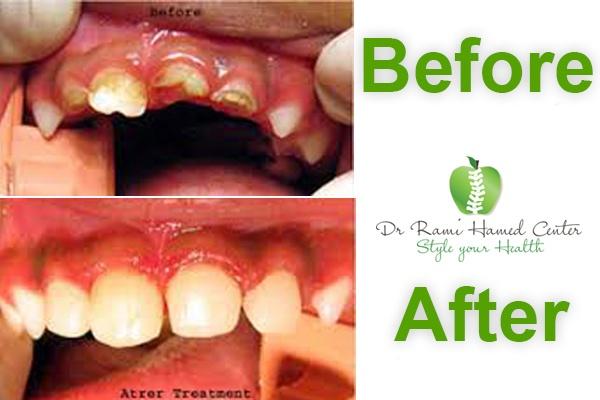 one year dental