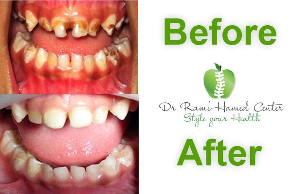 4 years Dental