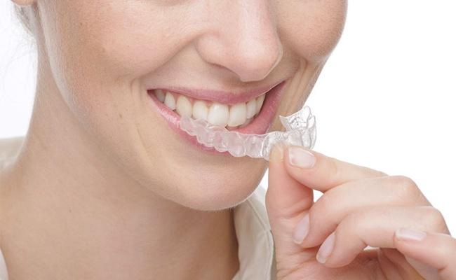 invisalign braces-Aligners-orthodontist-dubai
