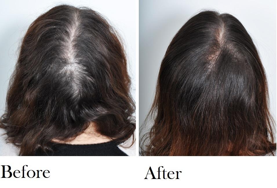 Hair-Restoration-.jpg
