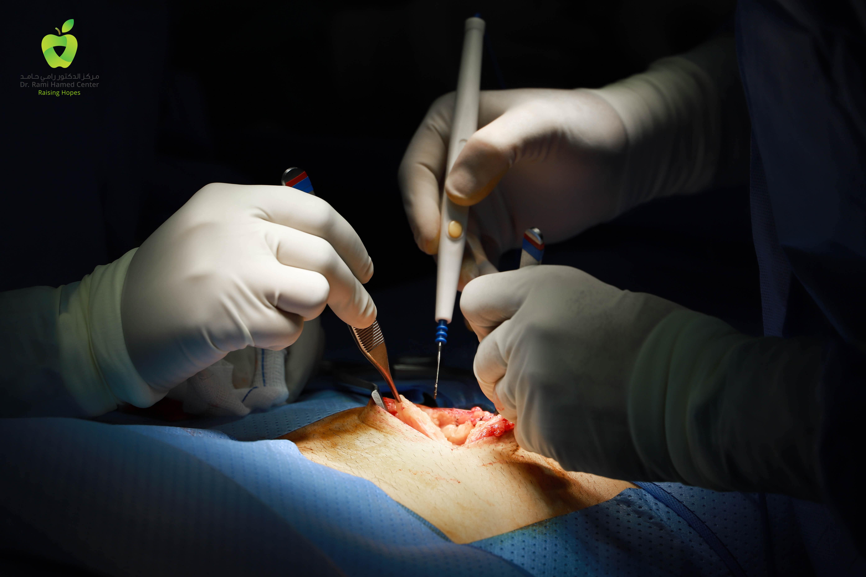 Dubai Hernia Surgery Clinic Internal Hernia