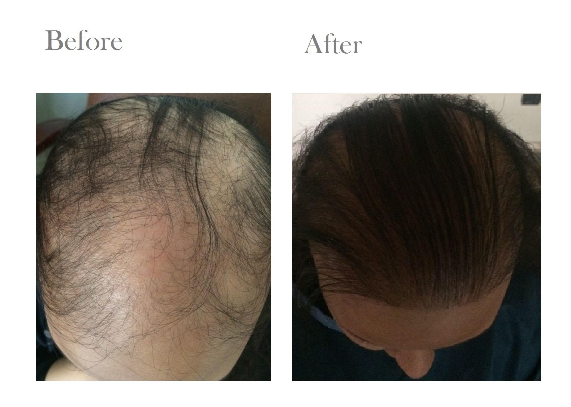 hairtransplantationdubai