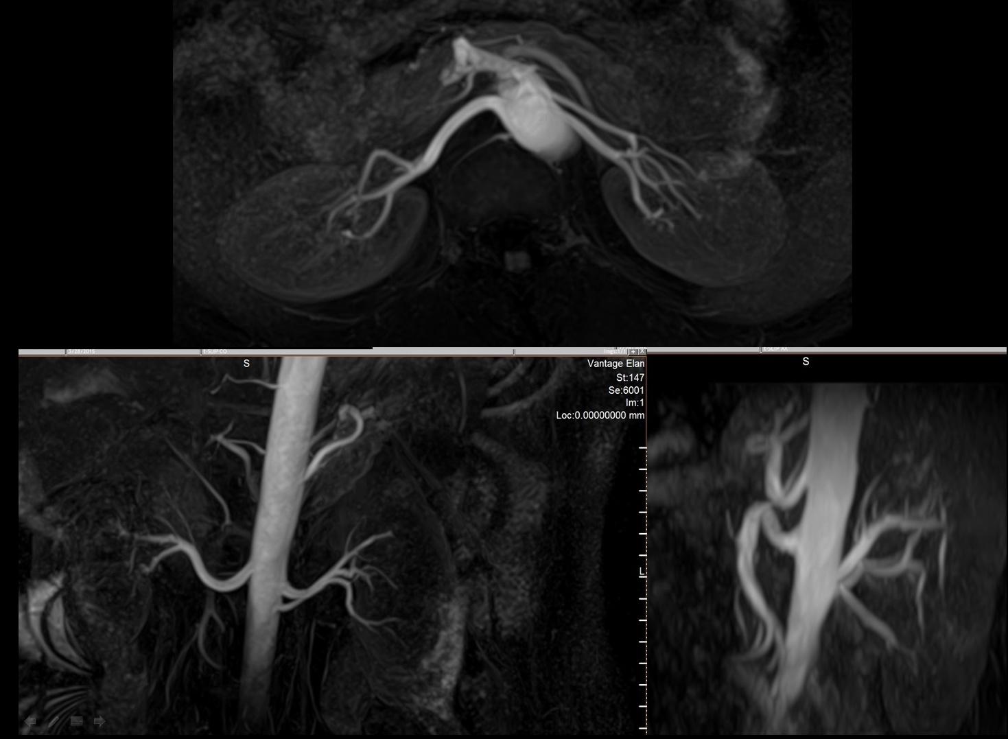 MRI Scan