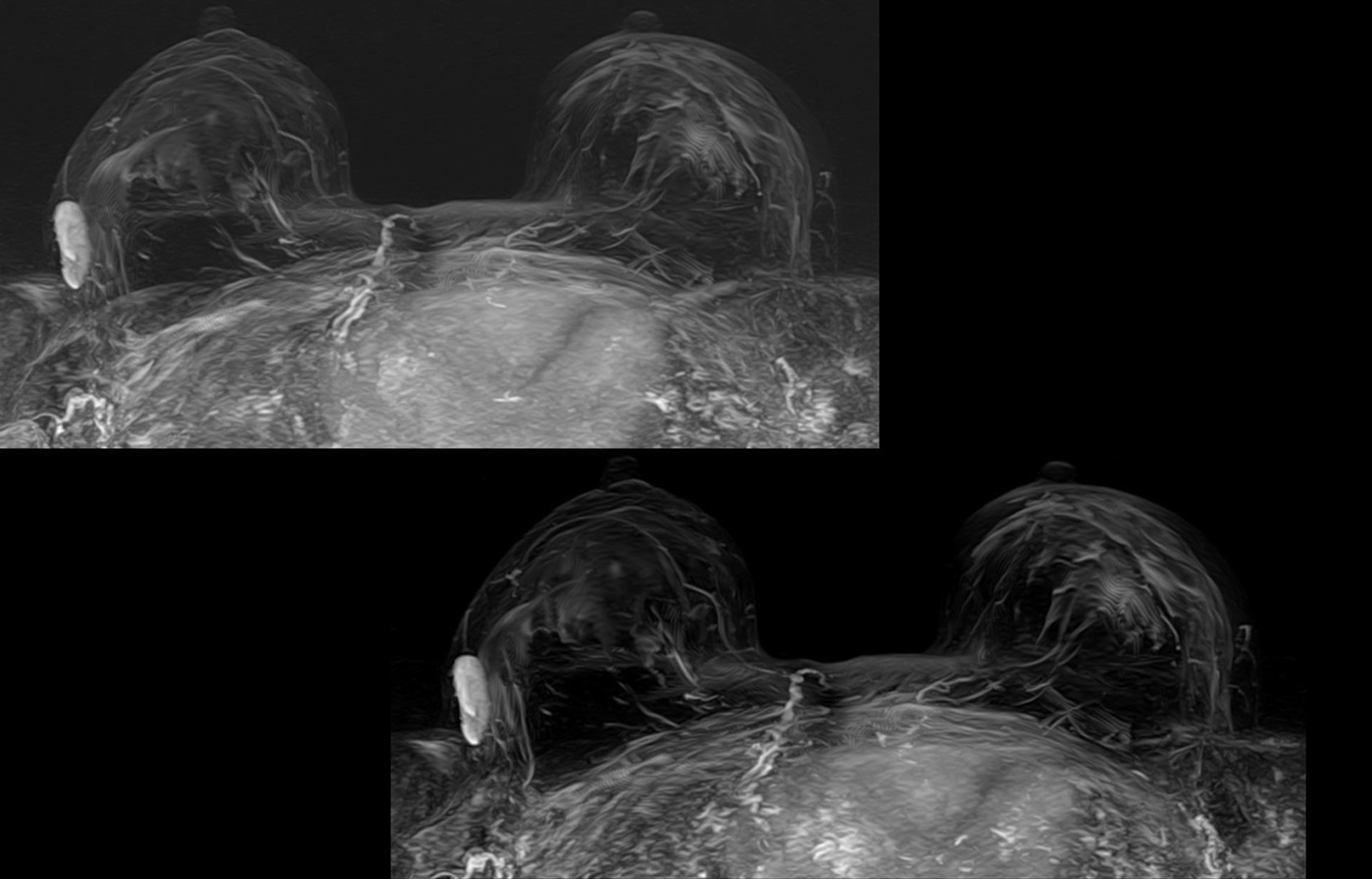 MRI slide dynamic