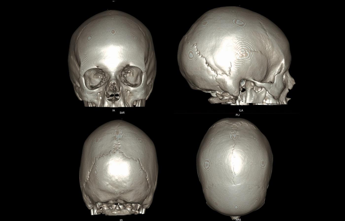 ct_slide_skull_3d0.jpg