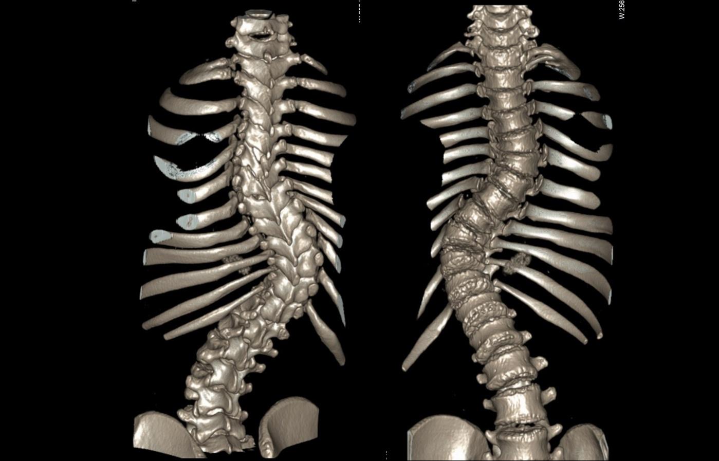 ct_slide_spine_3d_2-01.jpg