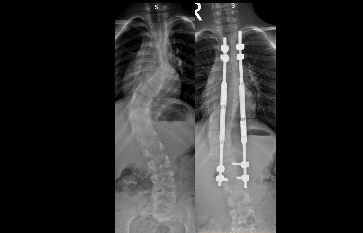 XR slide spine