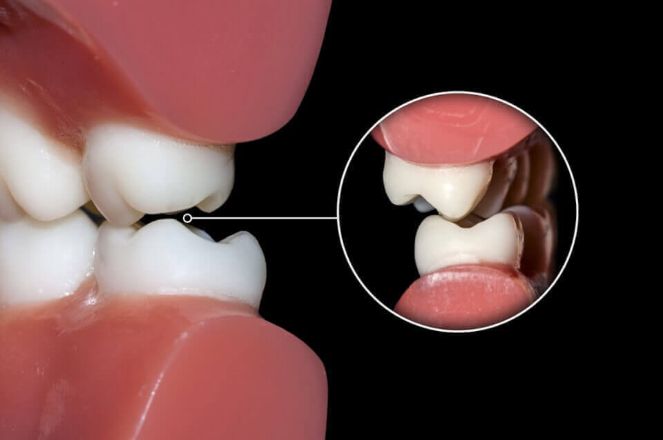 Teeth Grinding and Gum Recession