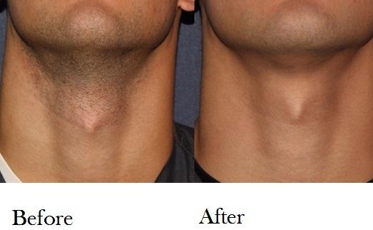laser hair reduction.jpg